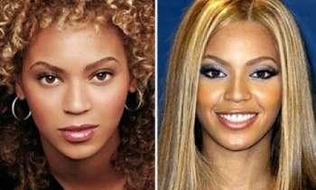 Noi operatii estetice ale celebritatilor - rinoplastie: Nas nou pentru Beyonce