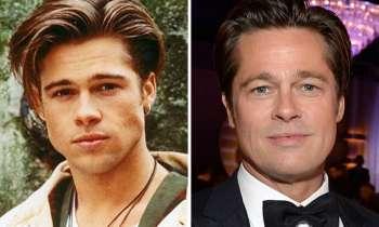 Top 5 barbati celebri care au apelat la rinoplastie