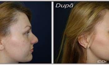 Alegerea chirurgului pastician - cel mai important pas in interventia de remodelare nas