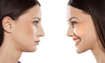 Cum iti poti modela nasul cu ajutorul interventiei de rinoplastie?
