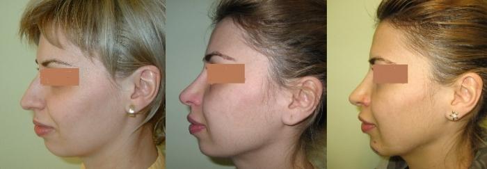 Implant de barbie si rinoplastie